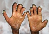 Leprosy01 (175 x 122)