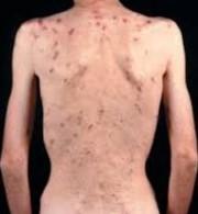AIDS01 (180 x 195)